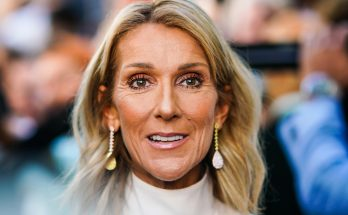Celine Dion Without Cosmetics