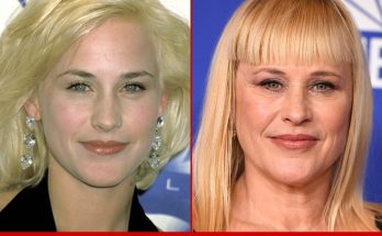 Patricia Arquette Without Cosmetics